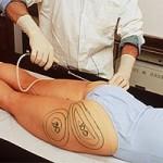 Lipoescultura vibratoria